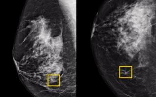 谷歌AI检测乳腺癌准确率超人类医生
